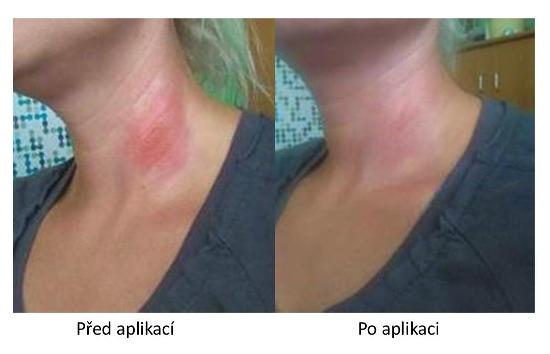 Účinky Dr. CBD VitaSkin Platimu