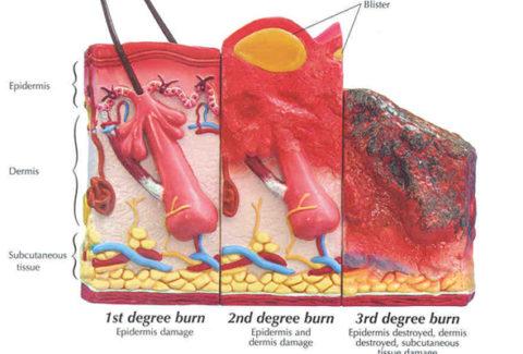 Skin burn Dr.CBD konopí